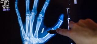 Würden Sie sich einen Chip unter die Haut implantieren lassen?