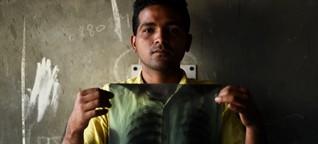Tuberkulose: Wenn das letzte Mittel versagt