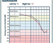 What is Audiogram?