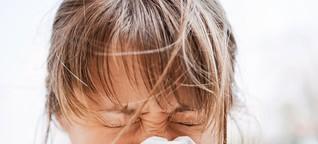 Immunsystem: Warum es immer mehr Allergien gibt