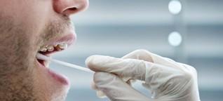 Stammzellspende: Warum wir uns alle typisieren lassen sollten