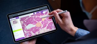Wie Künstliche Intelligenz den Krebs besiegen soll