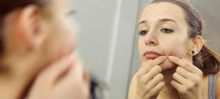 Hautkrankheit: Was gegen Akne hilft